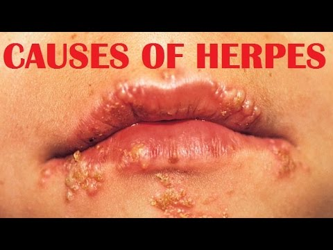 herpes cause